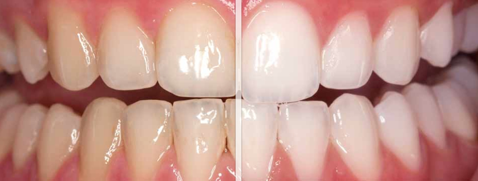 sbiancamento-dentale-prima-dopo